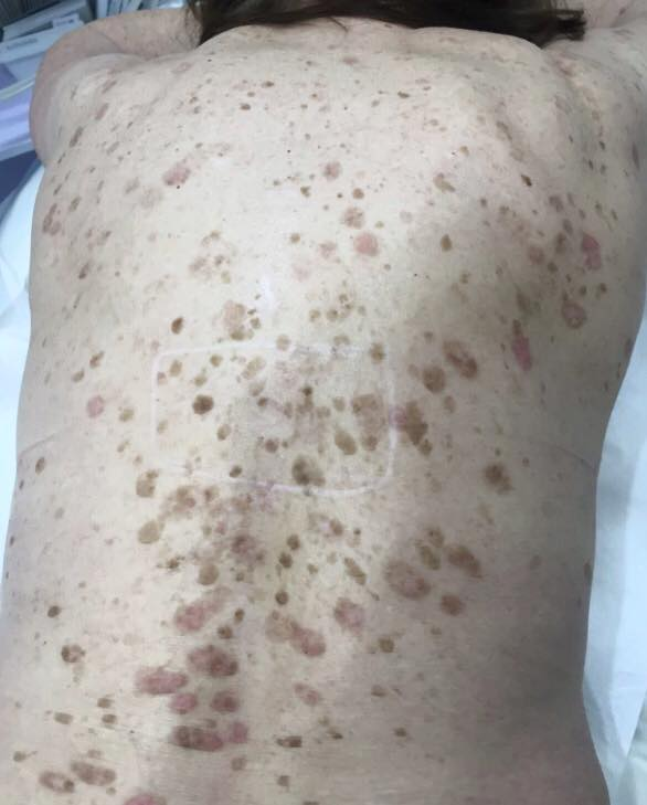 Seborrheic Keratosis - before